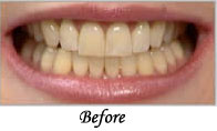 Laser Teeth Whitening Blue Light Treatment Whitening Teeth